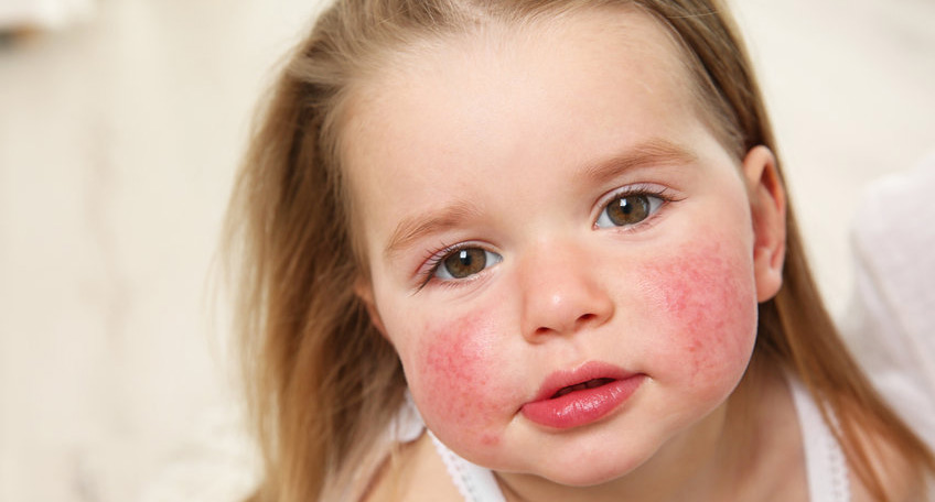 MBP-Kids-Health-Allergies